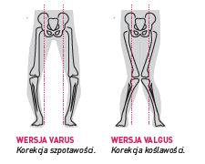 ortezy - sposóby korekcji kończyny